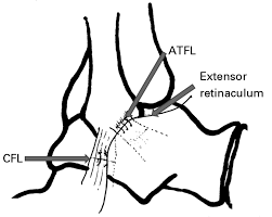Tibiofibular Ligament Injury Management Of Sports Injuries Of The Foot And Ankle The Bone