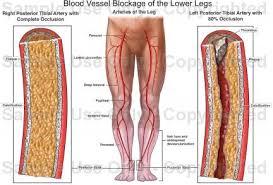 Foot Vascular Anatomy Blood Vessel Blockage Of The Lower Legs Medical Illustration
