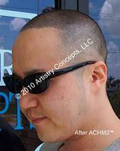 hair loss for balding by artistry concepts llc