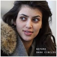 dark circles under my eyes neogaf