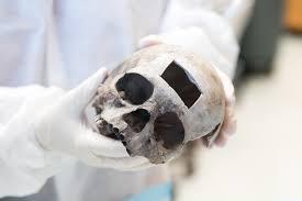 a skull and a bad angle
