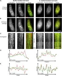 symbiotic rhizobia bacteria trigger a change in localization and