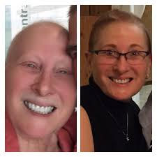 hair extensions post chemo toronto breast cancer topic hair hair hair another question