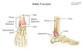 Talus Ligaments Ankle Fractures In Children Rehab My Patient
