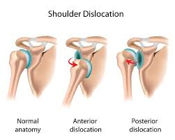 Human Shoulder Diagram Shoulder Instability Anatomy U0026 Causes Video Jeffrey H Berg