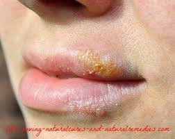 Challenge Wrong Herpes Can Herpes Hsv Be Cured Quora