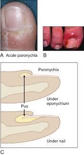 paronychia anesthesia key