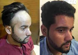 tyga hair transplant hairstyle ideas after transplant hairstyles by unixcode