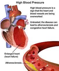 high blood pressure meds could prevent some 200 000 deaths each