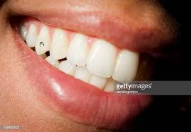 diamond stud on tooth diamond on teeth stock photos and pictures getty images