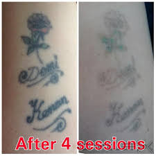 the missing ink laser tattoo removal woodley 5 tatton gardens