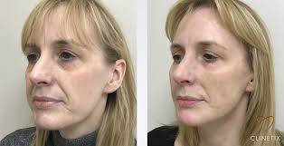 before u0026 after results achieved with the clinetix volume
