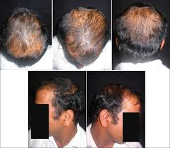 Signs Of Hair Loss Male Androgenetic Alopecia An Update Kaliyadan F Nambiar A