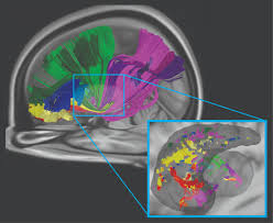 Human Brain Mapping With Big Data And Little Sleep Cmu Students Work To Accelerate