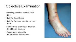 Anterior Fibular Ligament Ankle Syndesmosis Normal Anatomy Distal Tibiofibular Syndesmosis