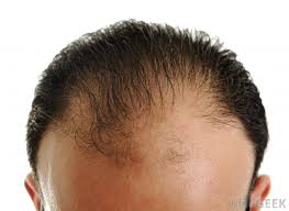 types of hair lines what is considered a normal hairline with pictures
