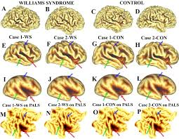 symmetry of cortical folding abnormalities in williams syndrome