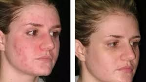 How To Remove Blind Pimple How To Get Rid Of Pimples Overnight Fast And Naturally