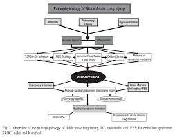 respiratory failure in sickle cell anemia acute chest syndrome