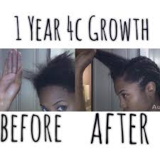 Coconut Oil For Hair Growth Results How I Grew 4c Hair Fast My Hair Story Good And Bad Included Part