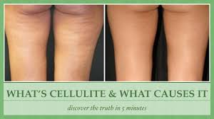 what is cellulite and what causes cellulite