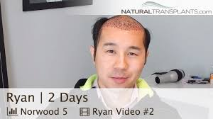 hair transplant costs in the philippines hair transplant cost advanced hair restoration alexandria
