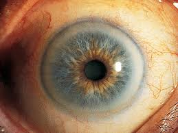 gray ring around the cornea 12 scary things your eyes say about