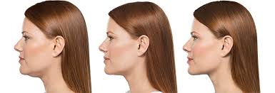 how to make a double chin look less noticable eith hair kybella before and after kybella