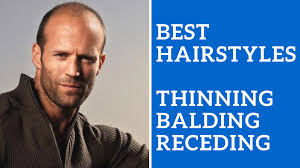 hair cuts for guys who are bald at crown of head haircuts for balding men archives ashley weston