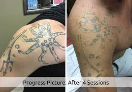 1 rated laser tattoo removal in florida reversatatt tattoo removal