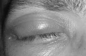 non traumatic ocular emergencies 2017 05 21 ahc media