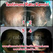 membuat minyak kemiri untuk rambut botak 3 cara mencegah kebotakan rambut alami pada pria