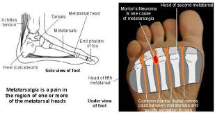 Foot Ligament Anatomy Metatarsalgia Foot Problems As The Result Of Metatarsalgia Patient