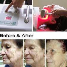 collagen red light therapy listen to your customers they ll tell you what to build