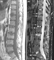 pilonidal cyst mri psoriatic arthritis wikis the full wiki