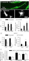 activation of microglia depends on na h exchange mediated h