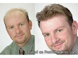 hair bonding hair loss treatment in pune hair transplant in pune hair