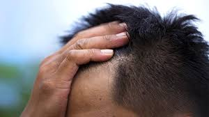 light treatment for scalp psoriasis does scalp psoriasis embarrass you you re not alone everyday health