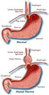 Esophagus And Stomach Anatomy Hiatal Hernia Treatment Raleigh Wake Gastro