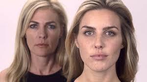 galderma u2013 aging advanced dermatology houston youtube