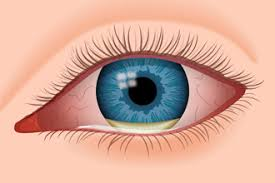 Signs And Symptoms Of Blindness Eye Infections What Should You Do