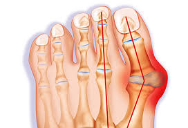 pictures bunion causes and treatments