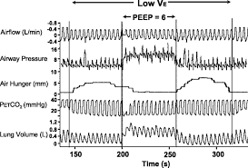 Types Of Ventilators Articles Journal Of Applied Physiology