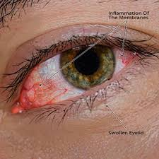 Signs And Symptoms Of Blindness How To Get Rid Of Pinkeye Symptoms Treatment Causes U0026 Pictures