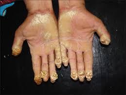 mycotic nails bi double you