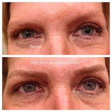 before and after microblading which is a manual tattoo technique