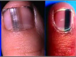 alert if you see a black stripe like this on someone u0027s fingernail