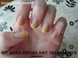 yellow nails is there a basecoat that prevents staining bliss