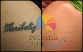 7 best laser tattoo removal treatment images on pinterest before