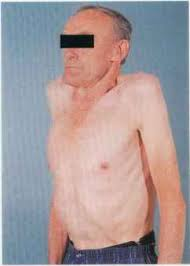 abnormalities in the shape of the chest examination sequence